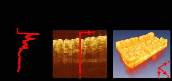 Diagnostics 2014, 4 58 OCT can provide nondestructive profilometry as well as 3D analysis of depth-resolved features.