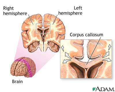 mo to r a re a Frontal lobe re a Cerebrum - divided into four lobes The right and left cerebral hemispheres interconnected by the corpus