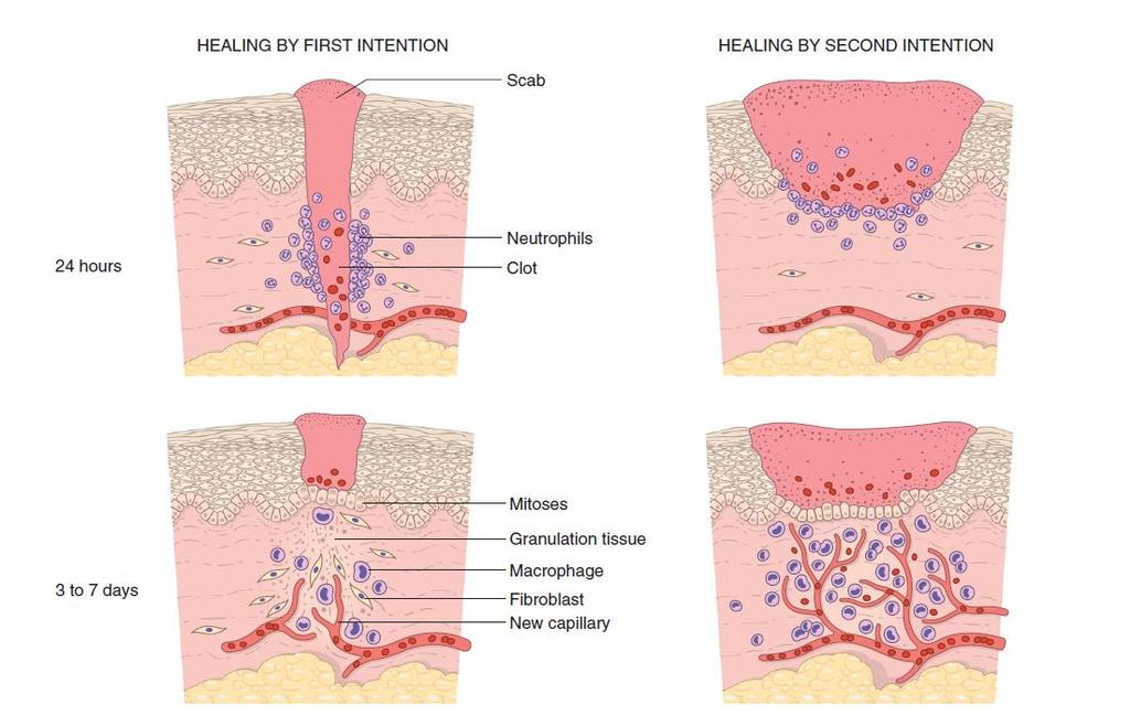 Steps in wound healing by first intention (left) and second intention (right).