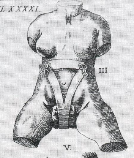 Schultes truss (1655). Figure 4.3: Wolveridge s bagg device compared to Schultes truss.