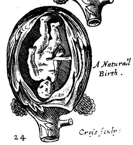 Illustrations shown floating freely in a spacious uterus.
