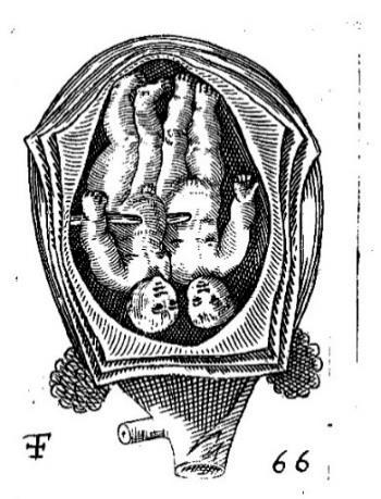 Illustrations feet option. An example of twins with both heads presenting is included in Figure 4.13 to demonstrate the similarities between the authors.