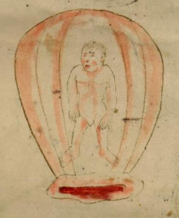 Illustrations birth figures conveyed similar information to those of the Speculum Matricis concerning the fetuses prior to childbirth, while allowing for variations in artistic interpretation.