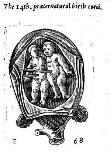 Illustrations Wolveridge, feet presenting Sloane 2463 twins Figure 4.32: A set of twins in Wolveridge compared to an image in Sloane 2463.