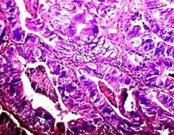 Fig-5: Metastatic adenocarcinoma in supraclavicular node with negative CK-7 staining Fig-6: Metastatic adenocarcinoma in supraclavicular node with negative CK-7 staining Fig-7: CK-20 showed diffuse