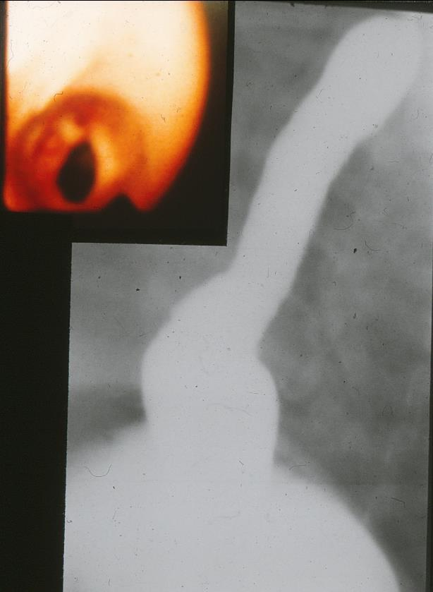 endoscopical finding B.