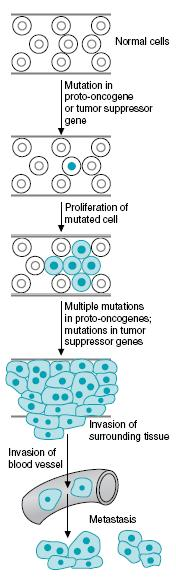 Biochemistry of Cancer and Tumor Markers The term cancer applies to a group of diseases in which cells grow abnormally and form a malignant tumor. It is a long term multistage genetic process.