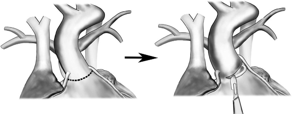 Technique of aortic translocation 183 Figure 2 With a beating heart, the aortic root is harvested from the right ventricle.