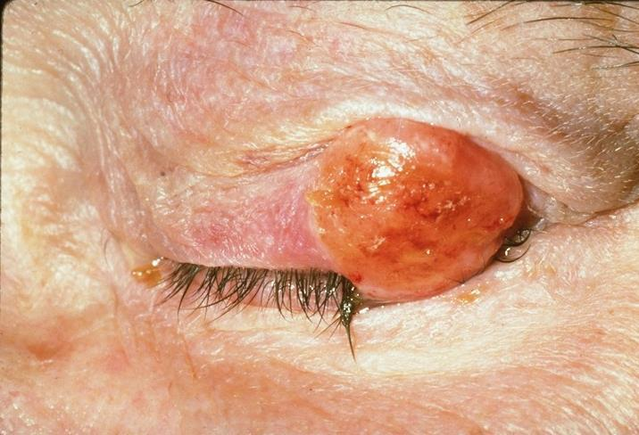 Squamous Cell Carcinoma Confused with: Sebaceous cell carcinoma, basal cell carcinoma Seborrheic keratosis, inverted
