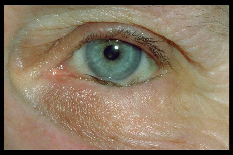 Entropion Inward turn of eyelid usually lower lid For