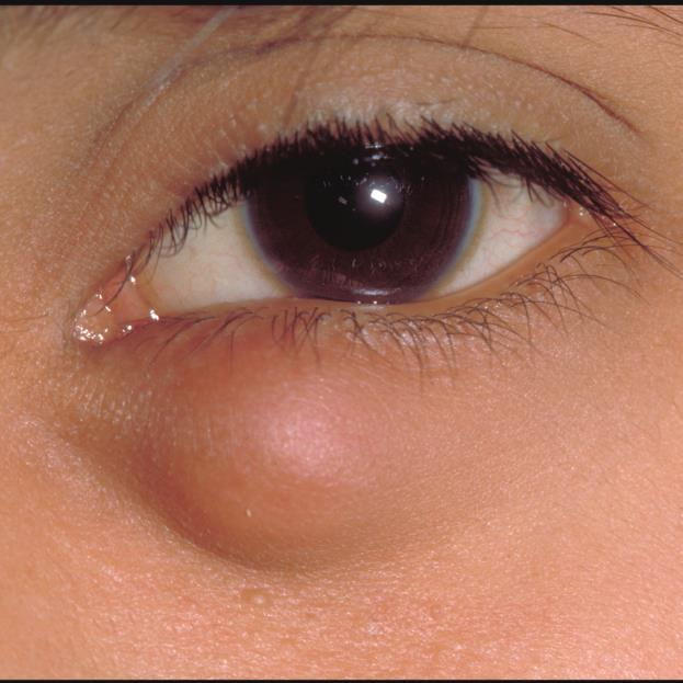 Chalazion Presentation Exam Signs Lesion within tarsus not