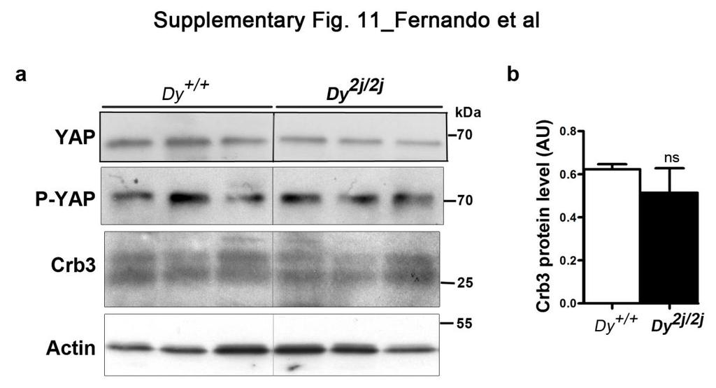 Supplementary Figure 11 YAP, phosphorylated YAP and Crb3 expression is sciatic nerves of Dy +/+ and Dy 2j/2j mice.