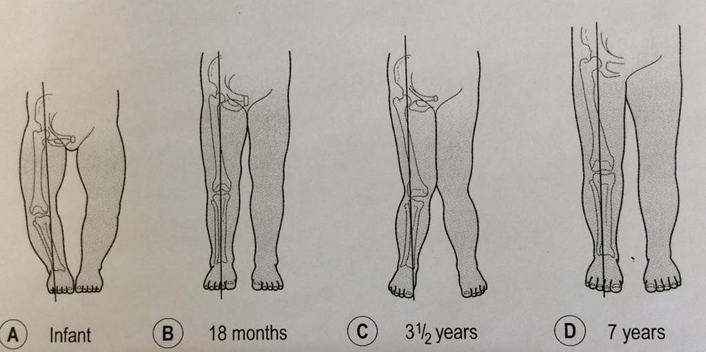 Examine knee- Frontal Frontal plane Patellar position