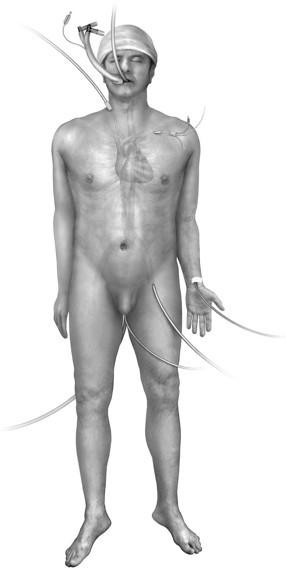 Technique of pulmonary thromboendarterectomy 169 Operative Technique Figure 1 Setup of the patient in the operating room. The patient is placed in the supine position on the operating table.