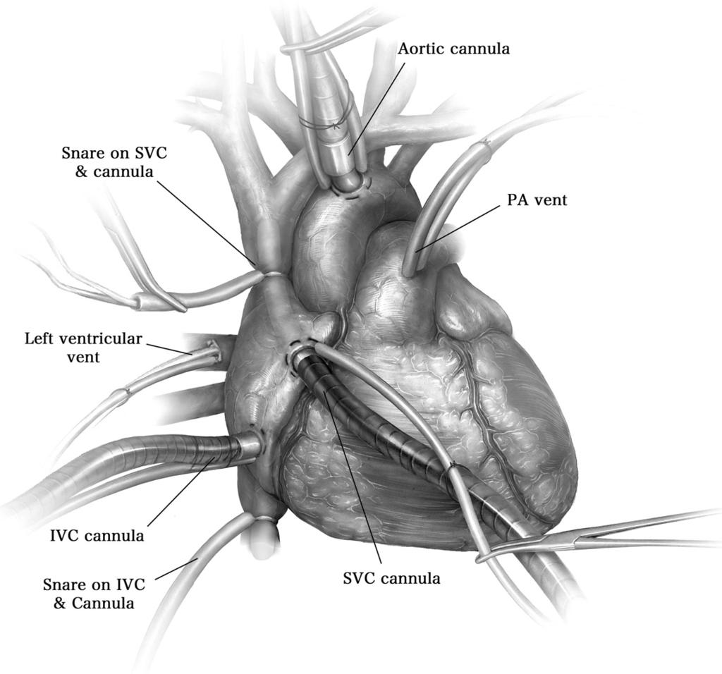170 I. Opitz and M. de Perrot Figure 2 Cardiopulmonary bypass. A median sternotomy is performed and the pericardium is longitudinally incised and suspended to expose the heart.