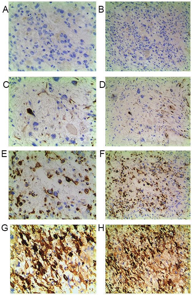 6230 GU and ZHOU: ENHANCED FAK EXPRESSION PREDICTS POOR PROGNOSIS IN OSTEOSARCOMA Table I.