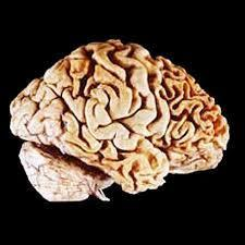 functions) Frontemporal Dementia Damage (atrophy) of frontal lobe