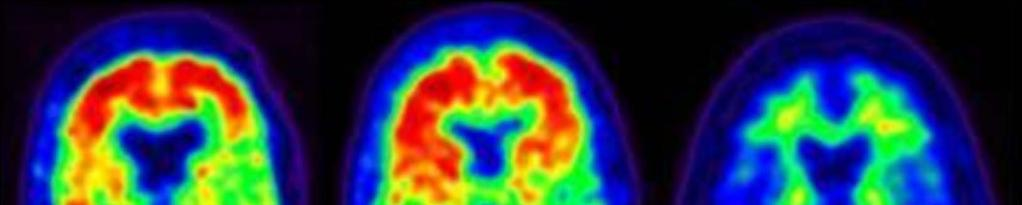 Biomarkers: Amyloid PET Alzheimer dementia Normal cognition Normal