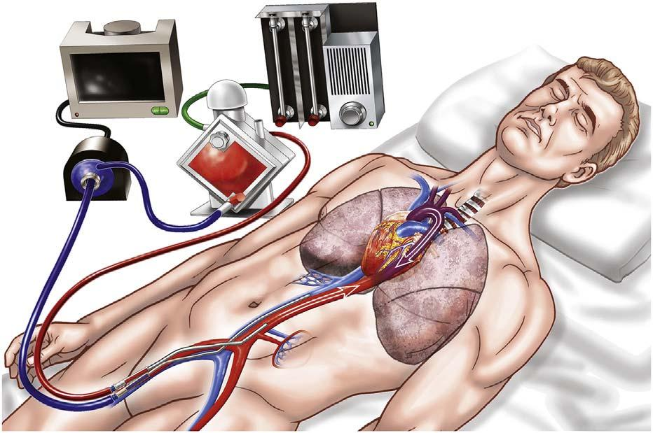 VA ECMO Peripheral Cannulation ECMO in