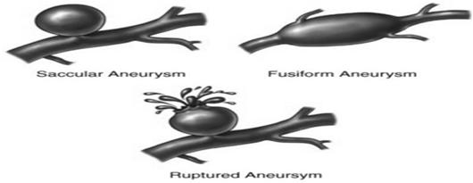 Aneurysm Occurs when part of a blood vessel swells due to damage or weakness. As blood pressure builds up it balloons out at its weakest point.