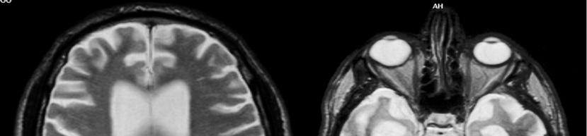 Diagnosing MCI: Neuroimaging MRI may be used to rule out cerebral infarction, mass lesion, or subdural hematoma.