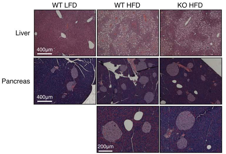 The LFD mice were age-matched with 6w HFD mice. Note the increase of adipose-infiltrating cells upon long-term HFD.