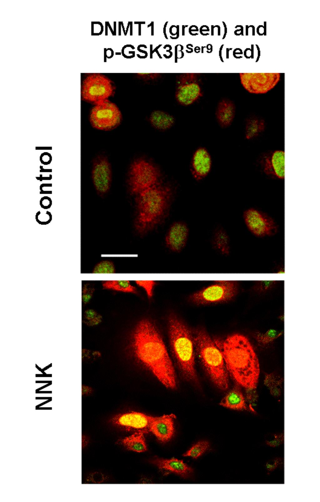 Supplemental Figure 5 An increase of DNMT1 and p-gsk3β Ser9 expression and their co-localization (yellow color) were observed in cells treated with NNK.
