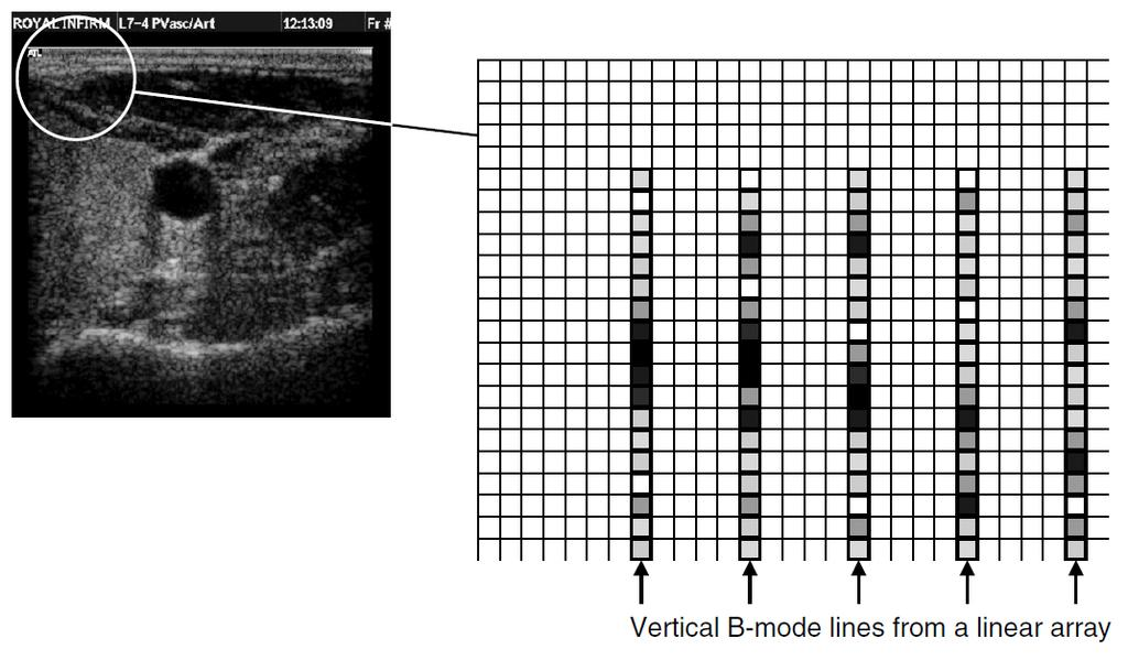 B-Mode Instrumentation Image reconstruction: scan conversion