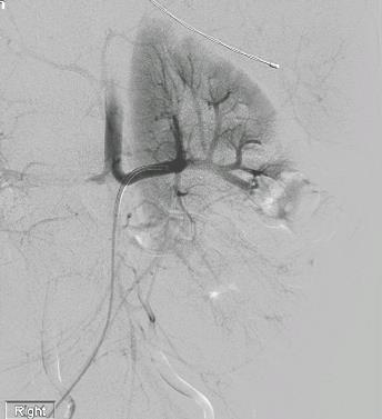 repeat embolization 1 Associated with post-embolization syndrome or perioperative complications (up to 85%) Risk of renal impairment with any invasive