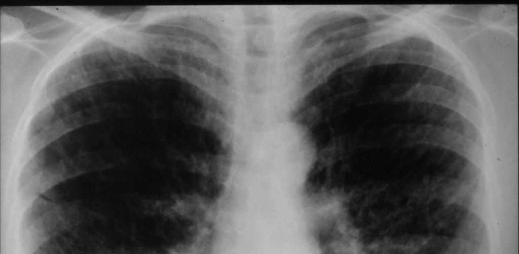 Lung cysts are the hallmark lesion in LAM and are present in all patients [12][13].