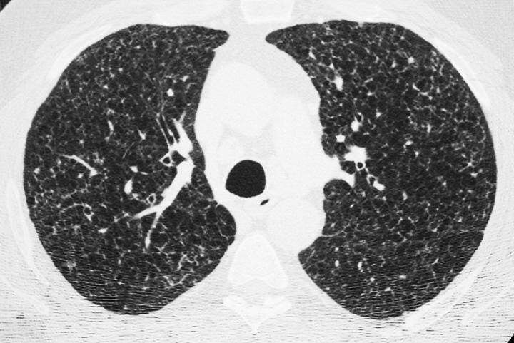 25 y.o. heavy smoker with recurrent pneumothoraces 50 y.o. >20 pk-yr smoker with night sweats and dyspnea X 6 months.
