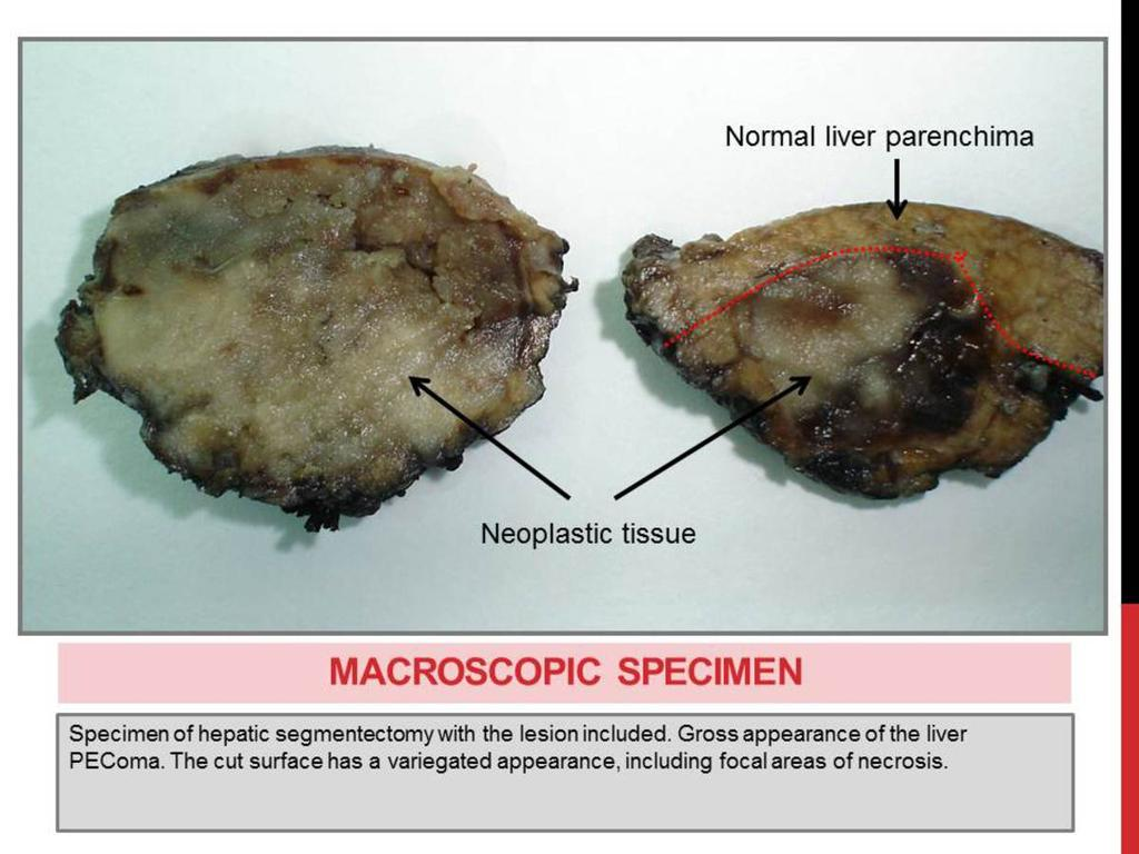 Fig. 15: MACROSCOPIC