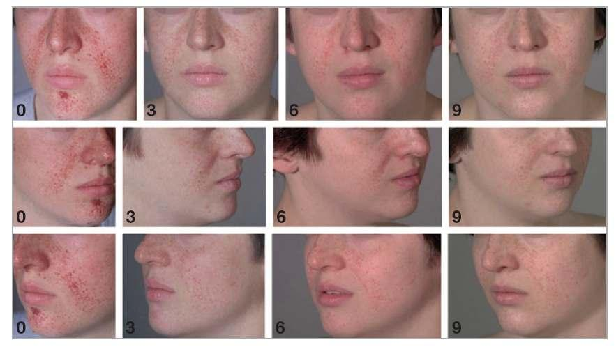 Rapamycinalso reduces facial