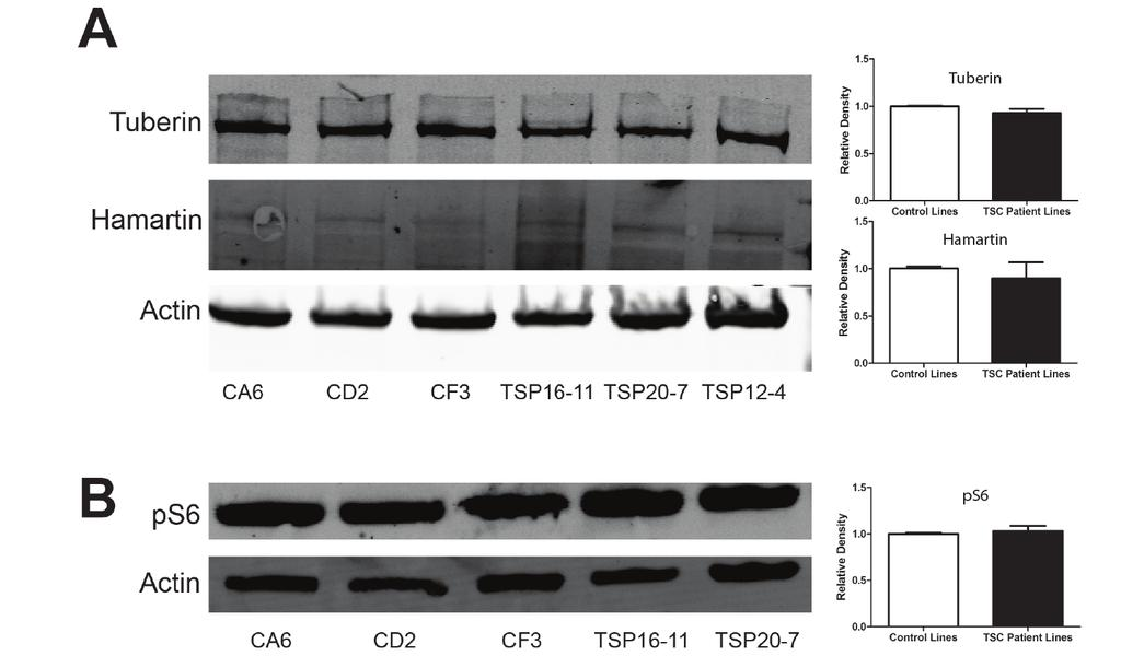 !!!!!!!! Figure 3.1 TSC Patient Derived ipscs express both TSC1 and TSC2 and do not have hyperactivation of mtorc1 activity.
