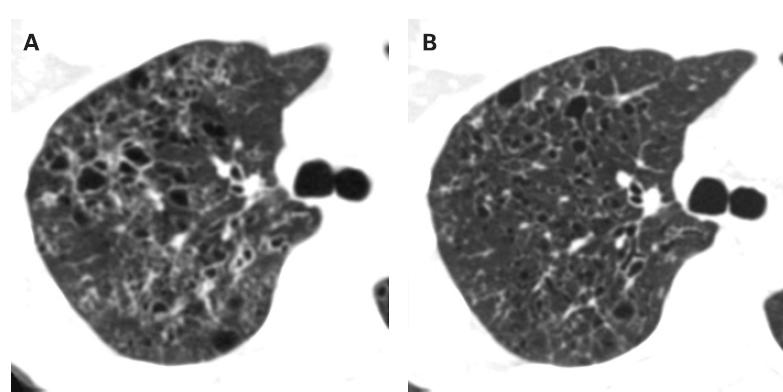 Progressive diffuse pulmonary Langerhans cell histiocytosis improved