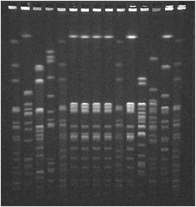 (PFGE) DNA fingerprinting Epidemiological purposes Cluster detection Outbreak investigation Prevention effectiveness Procedure that determines the order of bases in genome of an organism in one
