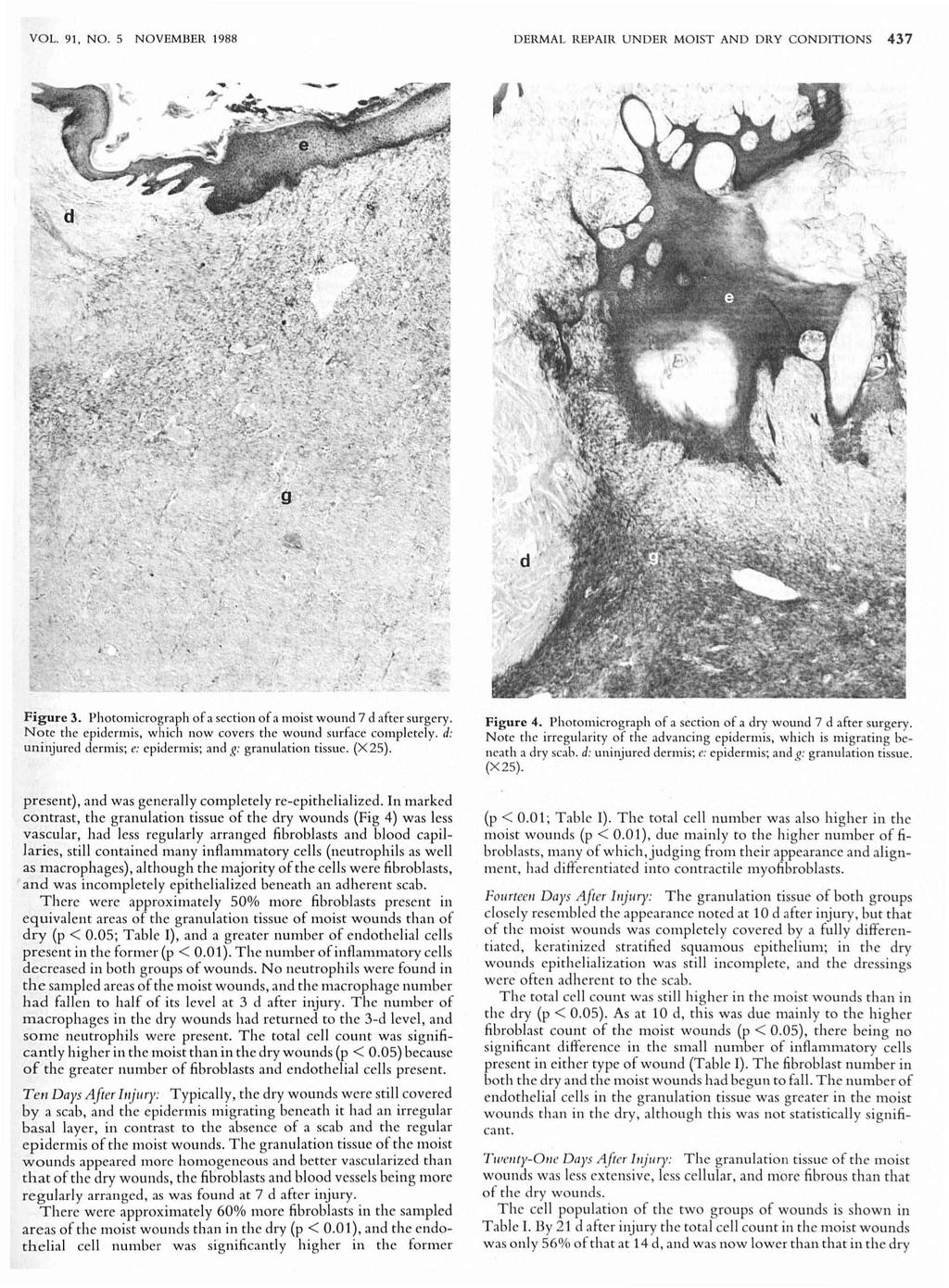 VOL. 91, NO. 5 NOVEMBER 1988 DERMAL REPAlR UNDER MO IST AND DRY CONDITIONS 437 Figure 3. Photomicrograph of a secti on of a moist wound 7 d after surgery.