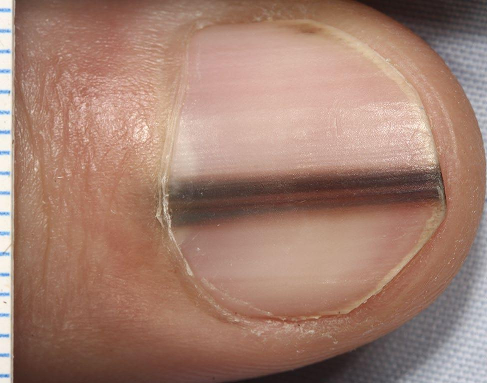 This pigment band on the nail plate appeared and widened over the preceding ten months.