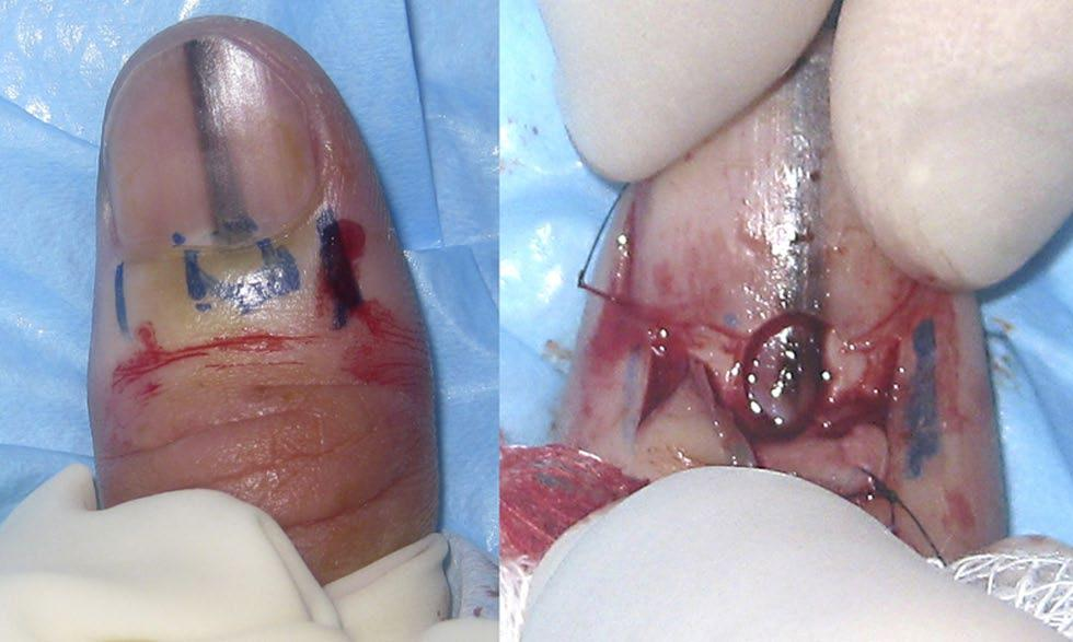 [Copyright: 2012 Rosendahl et al.] The patient had first noticed a fine band of pigment extending the full length of the nail 10 months earlier that had become progressively wider since then.