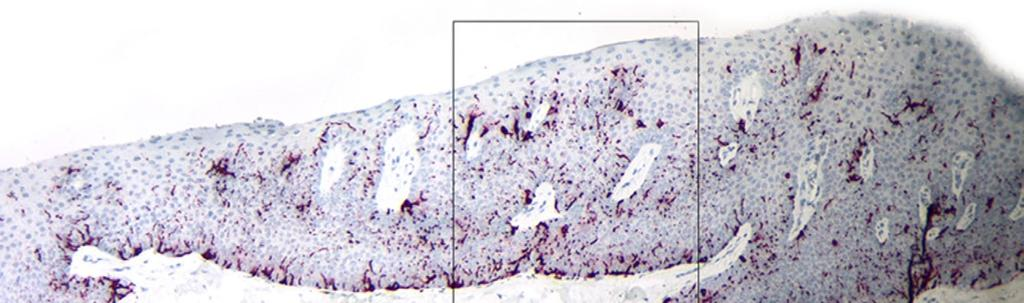 A B Figure 12. (A) A Low power micrograph of nail matrix from Case 2 stained with pan melanoma stain. (B) High power micrograph of the boxed area in A with pan-melanoma stain.