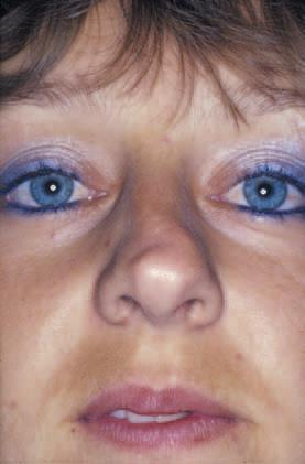 cartilaginous septum A high deviation of the cartilaginous nasal septum can result in a