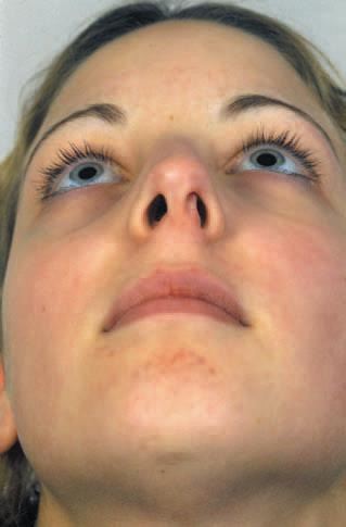 edge of the septum is present, the result is a distorted columella and occasionally an obstructed nostril on the deviated side (Figure