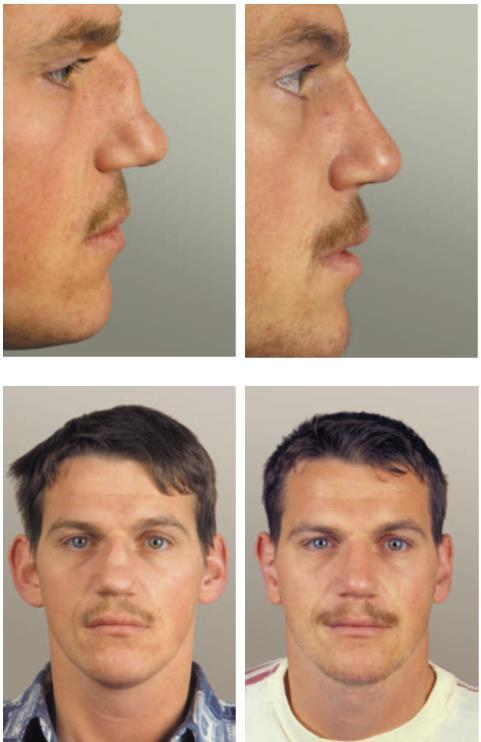 Figure 38 shows the result of this procedure in a patient s nose that has been reconstructed with cartilage taken from his protruding ears.