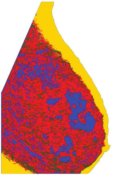 The tissue specific areas are: nodular (red), linear (green), homogeneous (blue) and radiolucent (yellow). Note that nodular tissue was over-segmented when using the moments based method.