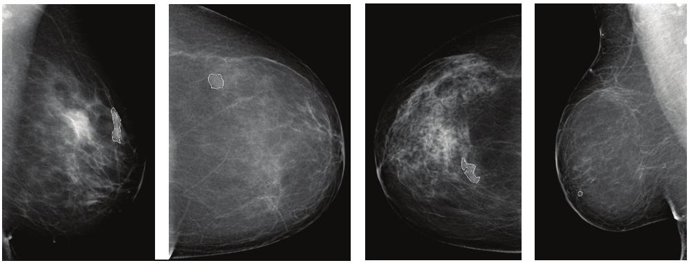 Metrological Assessment of a CAD System for the Early Diagnosis of Breast Cancer in Digital Mammography Metrological Assessment of a CAD System for the Early Diagnosis of Breast Cancer in Digital