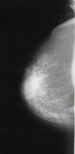 304 Mammography Recent Advances 12 Will-be-set-by-IN-TECH FFT of a region exhibiting a unidirectional periodic pattern FFT of a region without any evident periodic pattern Fig. 6.