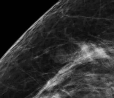 376 Mammography Recent Advances Fig. 2.