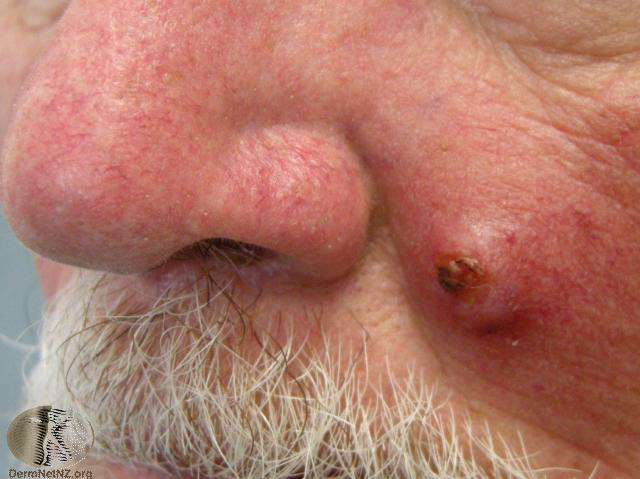 Squamous cell carcinoma Can also be Basal