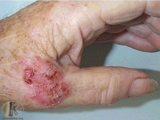 Early Squamous cell Looks like Eczema / Psoriasis /