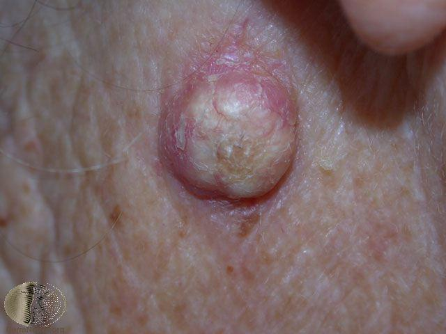 Keratoacanthoma version of Squamous cell carcinoma - can LOOK like a
